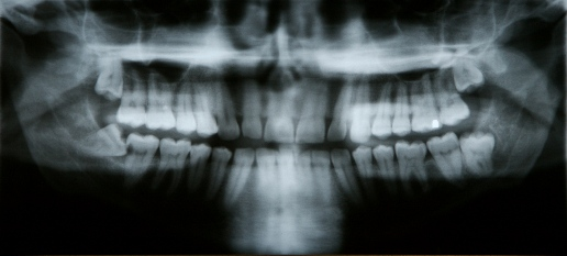 after-impacted-tooth